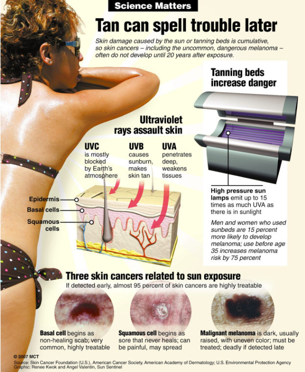 Tanning Bed Cancer Stories